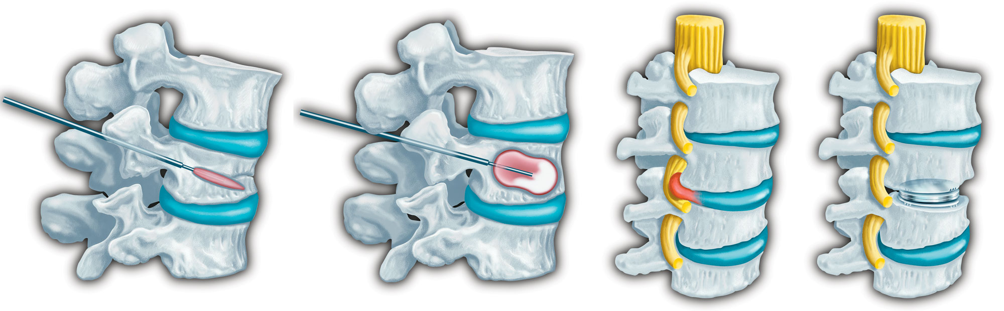 Spine medical illustration